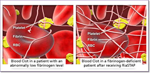Blood clot in fibrinogen-deficient patient before and after receiving RiaSTAP